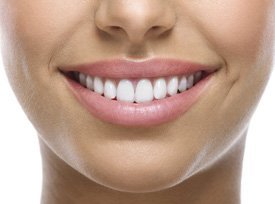 person smiling with veneers image